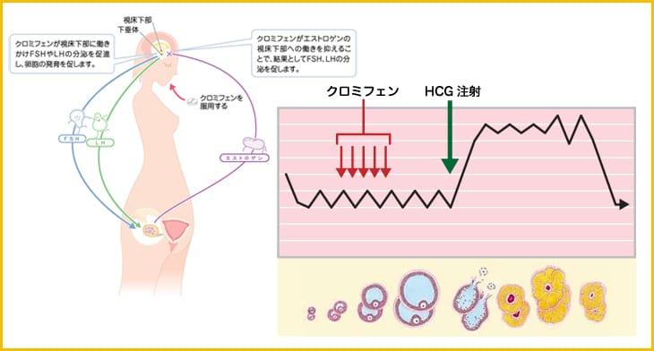 クロフェミン HCG注射