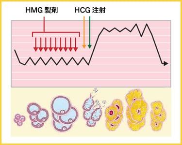 HMG製剤 HCG注射