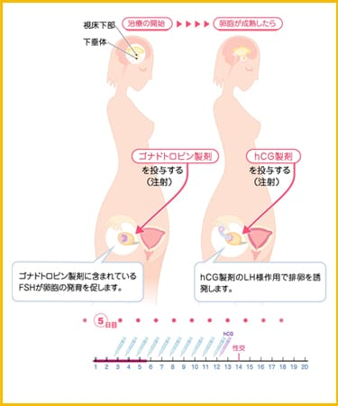 hMG製剤 治療の開始→卵胞が成熟したら